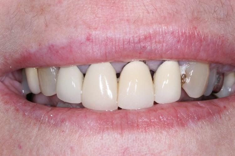 St Simons Island Ga Dentist